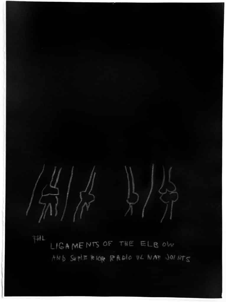 Jean-Michel Basquiat's 1984 print Ligaments of the Elbow